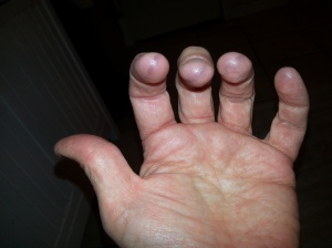 My black fingers from practicing.
